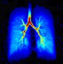 lungs-blue.jpg